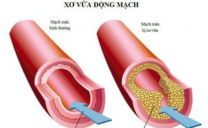 """Tẩy sạch mạch máu để ngăn ngừa đột quỵ dựa vào công thức """"3 cao, 4 thấp"""" nổi tiếng Đông y"""