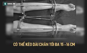 """""""Chuyện lạ"""" ở BV Quân y 108: Không chỉ người Việt, """"Tây"""" cũng đến xin kéo dài chân!"""