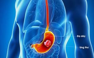 Ung thư dạ dày khi có triệu chứng đã ở giai đoạn muộn: Chuyên gia mách cách phát hiện sớm