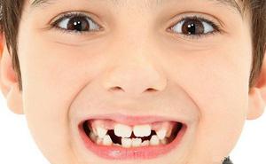 Bé trai 9 tuổi không mọc được răng cửa vĩnh viễn, nguyên nhân khiến cha mẹ bất ngờ