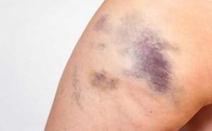 Những nguyên nhân phổ biến gây các vết bầm tím trên cơ thể