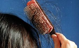 Áp lực thi cử quá lớn khiến bé gái 13 tuổi học đến hói đầu, lông mi, lông mày cũng rụng sạch