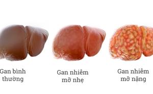 """GS dinh dưỡng: 5 nguyên tắc ăn uống """"bắt buộc"""" để tránh và giảm bệnh gan nhiễm mỡ"""