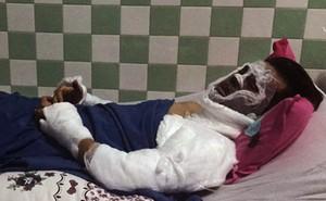 Việt kiều bị tạt a xít ở Quảng Ngãi bị cháy giác mạc