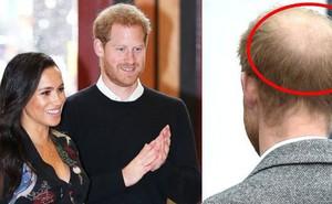 Sự thật giật mình đằng sau vẻ ngoài ngày càng xơ xác, xuống dốc của Hoàng tử Harry kể từ khi kết hôn với Meghan