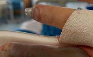 Đi làm nail ở tiệm quen nhiều năm trời, ngón tay của người phụ nữ bất ngờ bị hoại tử và suýt phải cắt bỏ vì nhiễm trùng