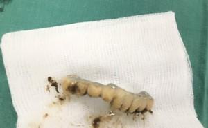 Hy hữu: Ho khạc đờm mạnh, hàm răng giả 9 cái rơi vào phế quản cụ ông 89 tuổi