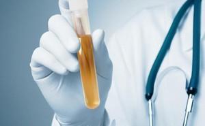 Đổi màu nước tiểu, phát hiện 1 loại ung thư cực chính xác