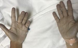 Người phụ nữ suýt mất mạng vì da đột nhiên chuyển thành màu xanh: Tất cả bắt đầu sau một trận đau răng