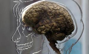 Những loại ký sinh trùng sẽ biến vật chủ của chúng thành zombie