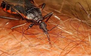 Bị bọ xít hút máu cắn, người đàn ông sốc phản vệ suýt chết