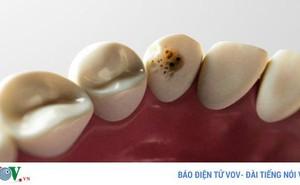 Những thực phẩm tuyệt vời giúp phòng ngừa sâu răng