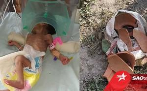 Bị chôn sâu gần 1 mét dưới đất, bé gái 3 ngày tuổi gây ngỡ ngàng khi còn sống