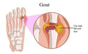 Bệnh gout có di truyền?