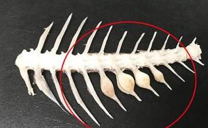 Người phụ nữ suýt chết do xương cá nhọn đâm vào ổ bụng