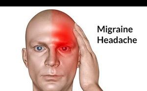 Bác sĩ cảnh báo: Đau đầu có những dấu hiệu bất thường sau cần phải đến viện gấp