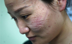 Dị ứng da, vết máu hằn trên mũi: Đằng sau sự hi sinh thầm lặng của y bác sĩ TQ trên tuyến đầu chống dịch