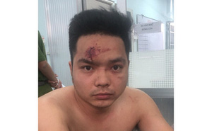 Bị kiểm tra, thanh niên dùng bình xịt hơi cay tấn công CSGT ở Sài Gòn