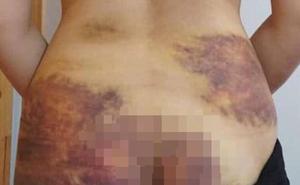 Vụ cô gái bị chồng bạo hành, ép quan hệ ở Tây Ninh: Kết quả giám định thương tật 4%