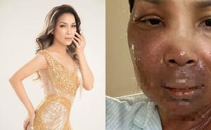 Ca sĩ Hồng Ngọc bất ngờ công khai ảnh bị bỏng 2/3 gương mặt