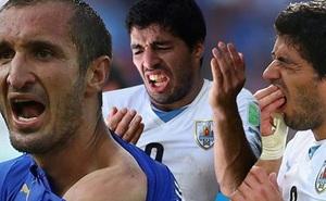 9 điều khoản hợp đồng dị nhất trong bóng đá: Từ cấm cắn người cho tới ăn tinh hoàn cừu