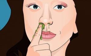 Những người thích ngoáy mũi có thể sẽ phải gánh chịu 3 hậu quả nghiêm trọng này, đặc biệt là trong mùa dịch Covid-19