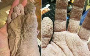 Đăng tải bức ảnh bàn chân kỳ dị lên mạng xã hội, thanh niên khiến cư dân mạng hoảng sợ, đuổi đi khám bác sĩ ngay lập tức