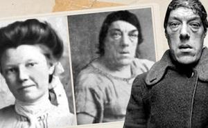 Mắc bệnh lạ khiến gương mặt biến dạng, người phụ nữ chấp nhận trở thành trò cười cho thiên hạ để kiếm tiền nuôi con