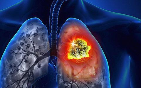 U phổi có phải ung thư: Bác sĩ chia sẻ 3 điều nên biết để người bệnh đỡ hoang mang