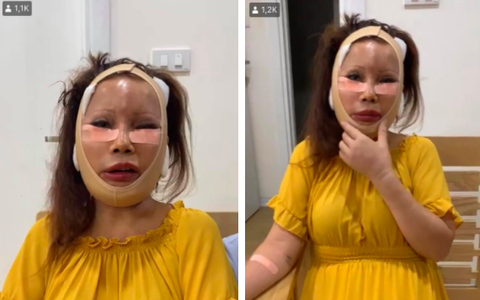 Vừa hoàn tất ca phẫu thuật thẩm mỹ không lâu, cô dâu 62 tuổi nay lại nắm tay chồng xuất hiện với gương mặt sưng phồng, băng bó khắp mặt