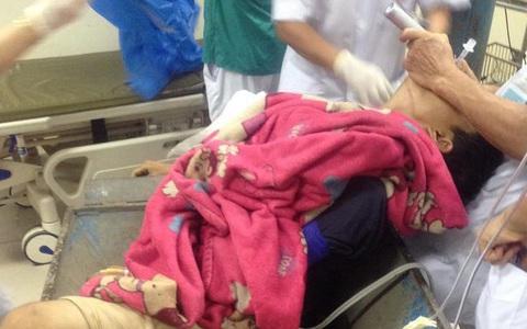 khiêng cả máy gạch và bệnh nhân vào viện: Nam thanh niên bị máy làm gạch nghiền nát chân được cứu sống