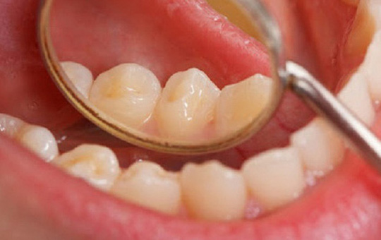 Các yếu tố nguy cơ gây ung thư miệng