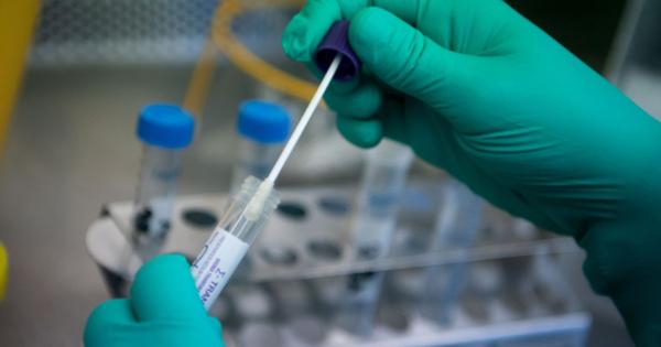 TP. HCM: 3 F1 của bệnh nhân 2899 ở Hà Nam âm tính lần 1 với virus SARS-CoV-2