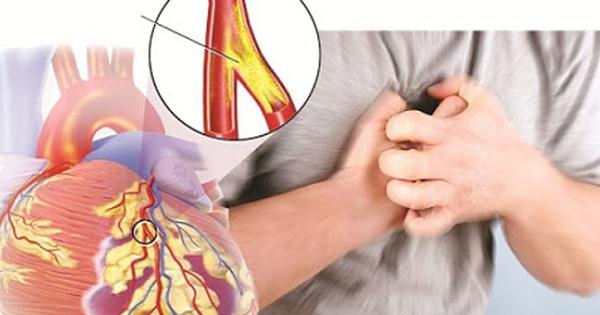 Đau vùng xương ức, cảnh báo bệnh nguy hiểm