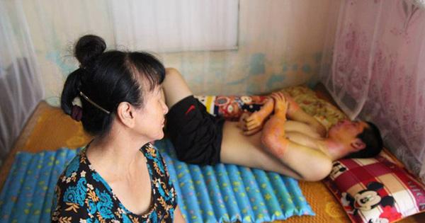 """Bật đèn khi có mùi gas, 3 bác cháu bị bỏng nặng, gia đình phải """"trốn viện"""" vì không có tiền điều trị"""