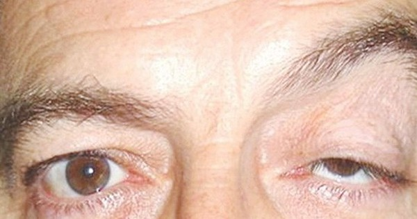 Sụp mi mắt – dấu hiệu của nhiều bệnh lý nguy hiểm