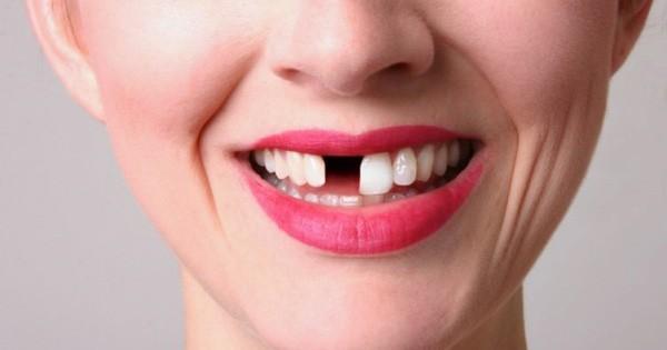 Xử lý sứt răng do ngã