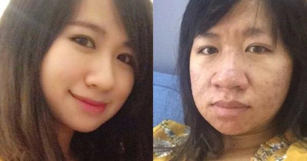 Nhìn ảnh trước và trong khi mang bầu, cô gái nhớ quãng thời gian bị chồng cấm soi gương