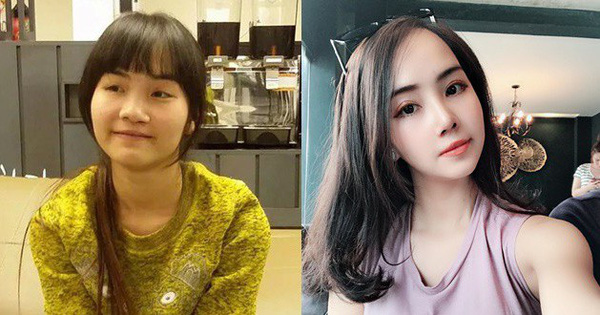 Từng bị bạn bè cầm chổi ném vì xấu xí, cô gái Hà Nội hở hàm ếch lột xác, đổi đời sau phẫu thuật thẩm mỹ