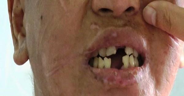 """Nữ chủ nhà bị tố tra tấn người giúp việc nói Nhiêu đã bỏ """"thuốc thư"""" vào thức ăn của bà"""