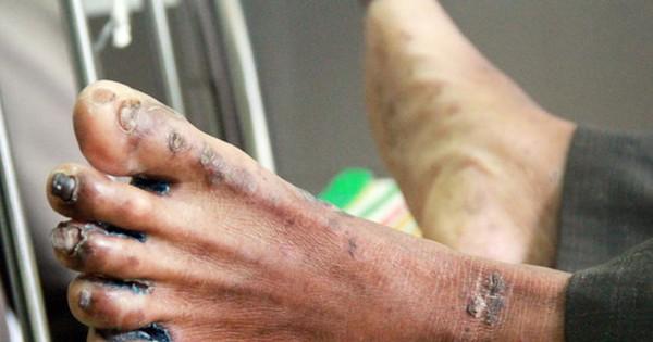 Bệnh lạ dày sừng bàn chân, bàn tay tái bùng phát: 10 người mắc, 1 người chết
