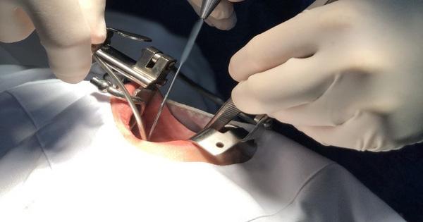 Có mụn trong miệng chủ quan 3 năm không khám, thấy dấu hiệu bất thường này thì đã thành khối u