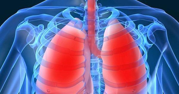 Làm thế nào để biết mình có bị lao phổi hay không?