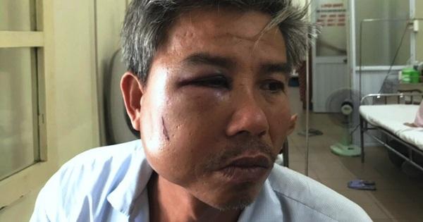 Nhân viên cây xanh bị đánh bầm dập, vỡ hàm khi chụp ảnh hiện trường