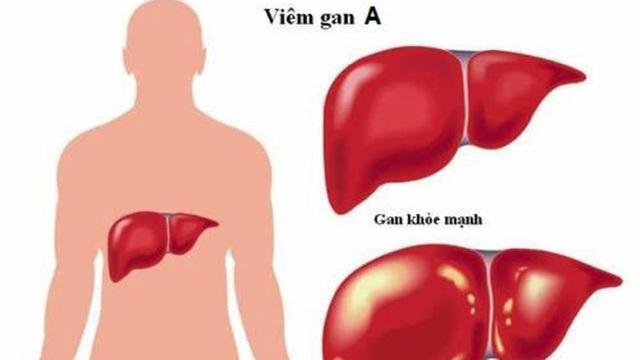 Nhận biết bệnh viêm gan A