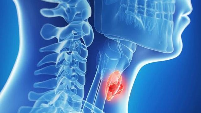 Ung thư vòm họng có thể sống được bao lâu, cách kéo dài thời gian sống thế nào tốt nhất?