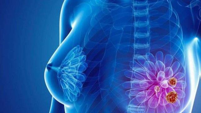 Ung thư vú - bệnh nguy hiểm gây tử vong hàng đầu: Những người sau có nguy cơ cao mắc bệnh