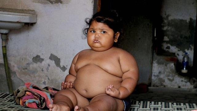 """Cuộc sống của """"bé gái béo nhất thế giới"""" từng khiến truyền thông phải ngỡ ngàng 3 năm trước giờ ra sao?"""