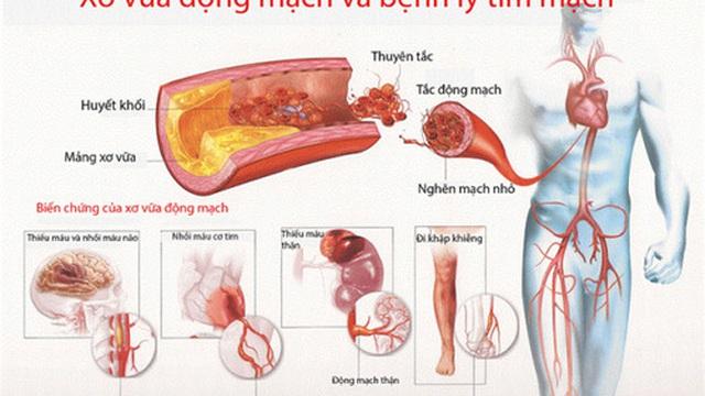 Một số chứng bệnh tim nguy hiểm thường gặp