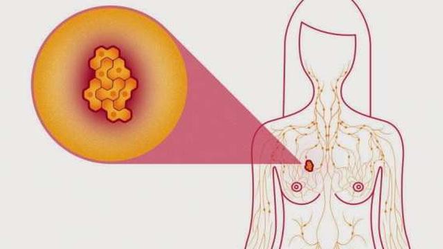 [Ung thư không phải là hết] Những nguy cơ bạn có thể gặp phải khi tầm soát ung thư vú